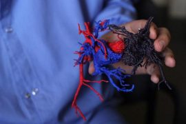 Doctors were given a 3-D model of Paisleigh (red and blue) and Paislyn's (purple) hearts to help them prepare for surgery. (Courtesy of University of Minnesota)
